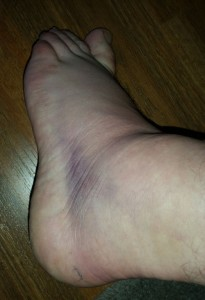 sprained-ankle